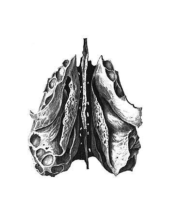 Решетчатая кость os ethmoidale